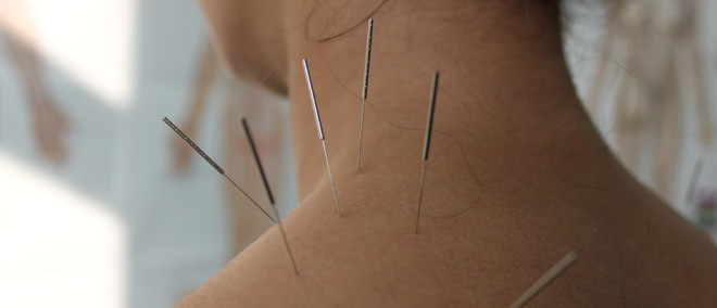 The only clinic offering certified dry needling in Moab