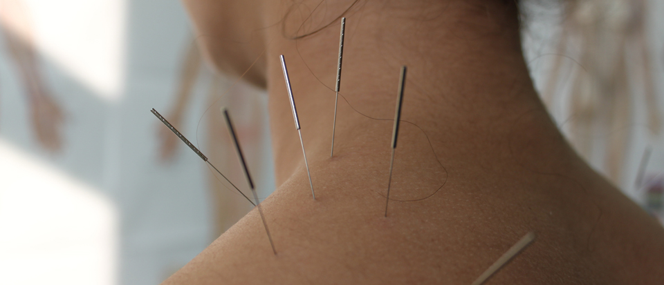 certified-dry-needle-therapy-dry-needling