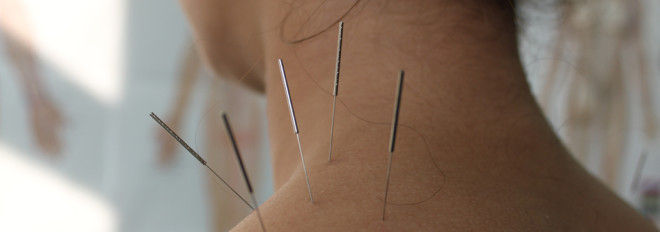 the only certified dry needle dry needling therapy clinic in Moab Utah your best physical therapy option